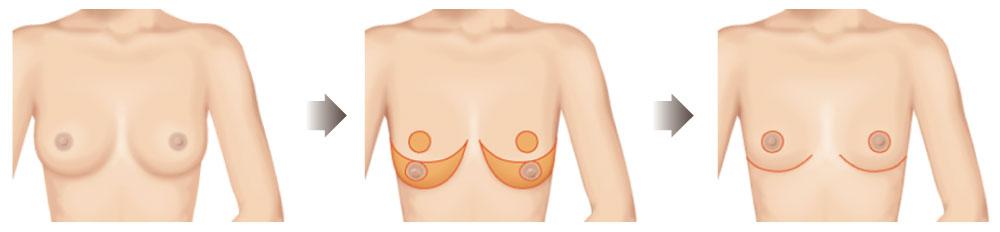 《乳暈周圍合併乳房下緣切口縮乳法圖解》