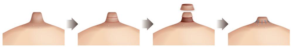 《乳頭縮短圖示》