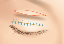 Full-incision double eyelid surgery