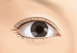 Revision Double Eyelid Surgery - Open double eyelids