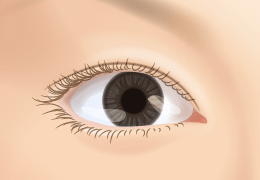 Revision Double Eyelid Surgery - Closed double eyelids