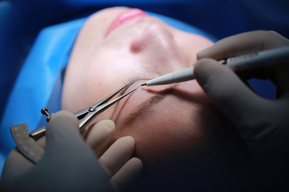Eyelid - Blepharoplasty surgery