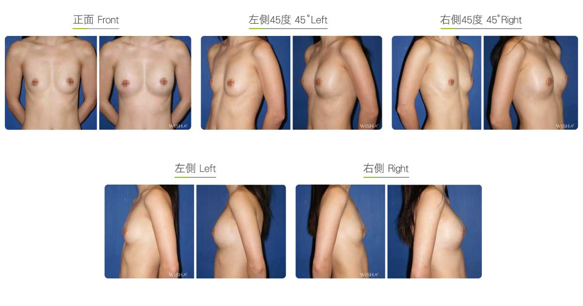 Breast asymmetry before after