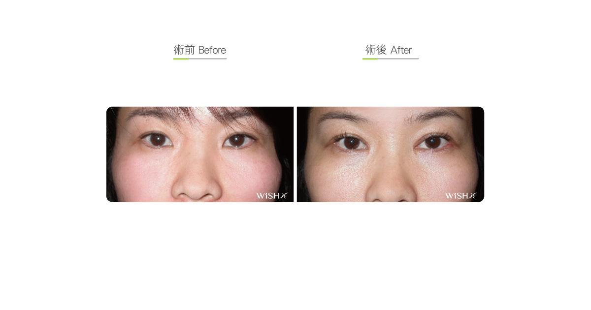 Medial Canthoplasty - Eyelid | Wish Aesthetic Surgery Clinic