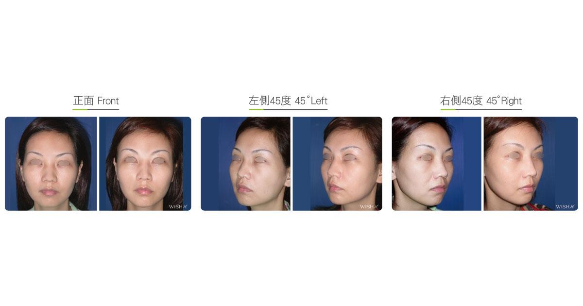 Foreheadtemporalmalarcheek Augmentation  Wishclinic-6565