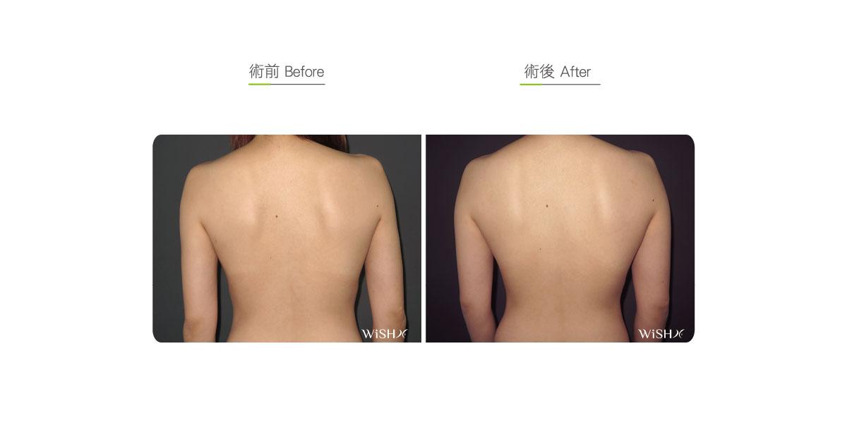 back liposuction fats surgery wish aesthetic surgery clinic