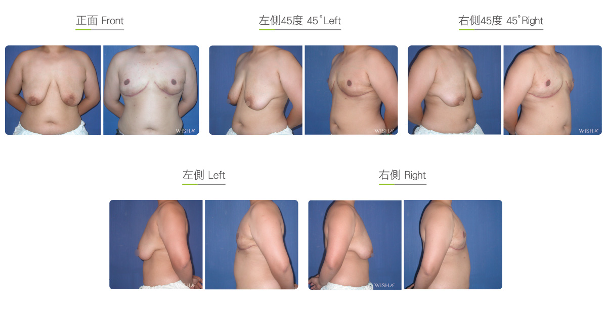 Female Breast Reduction Beforeafter Wishclinic