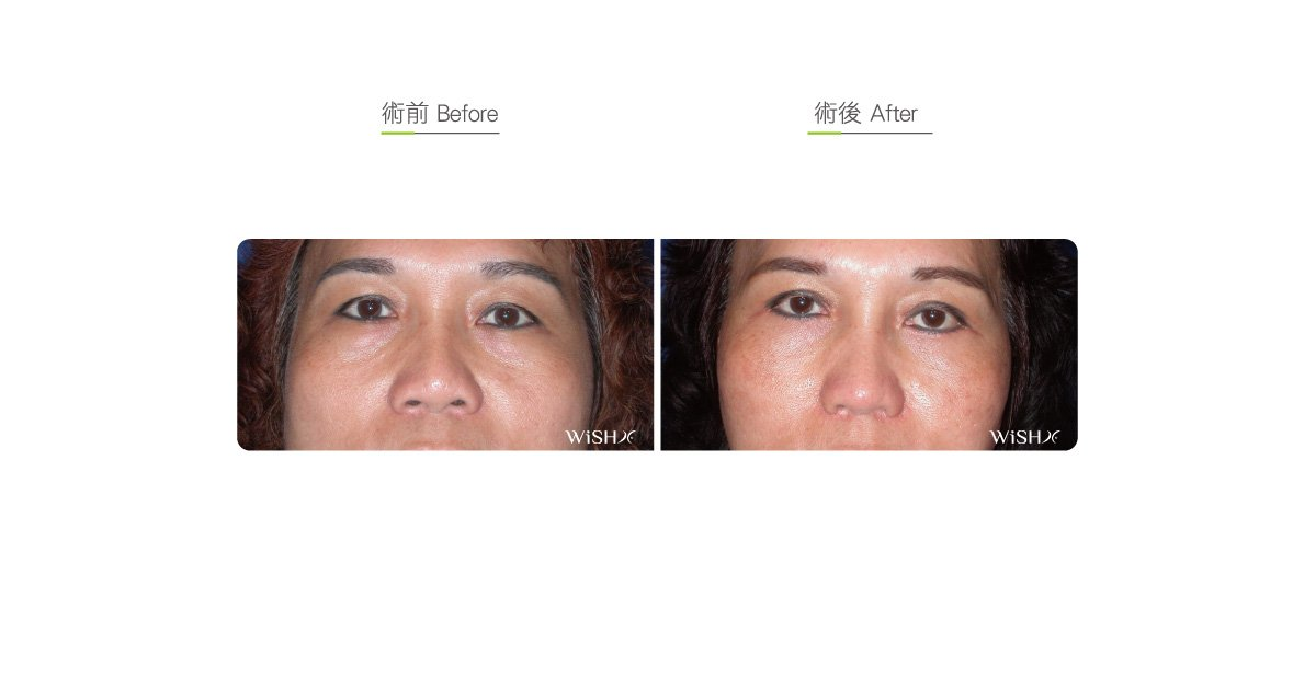 Full-incision double eyelid surgery | WishClinic