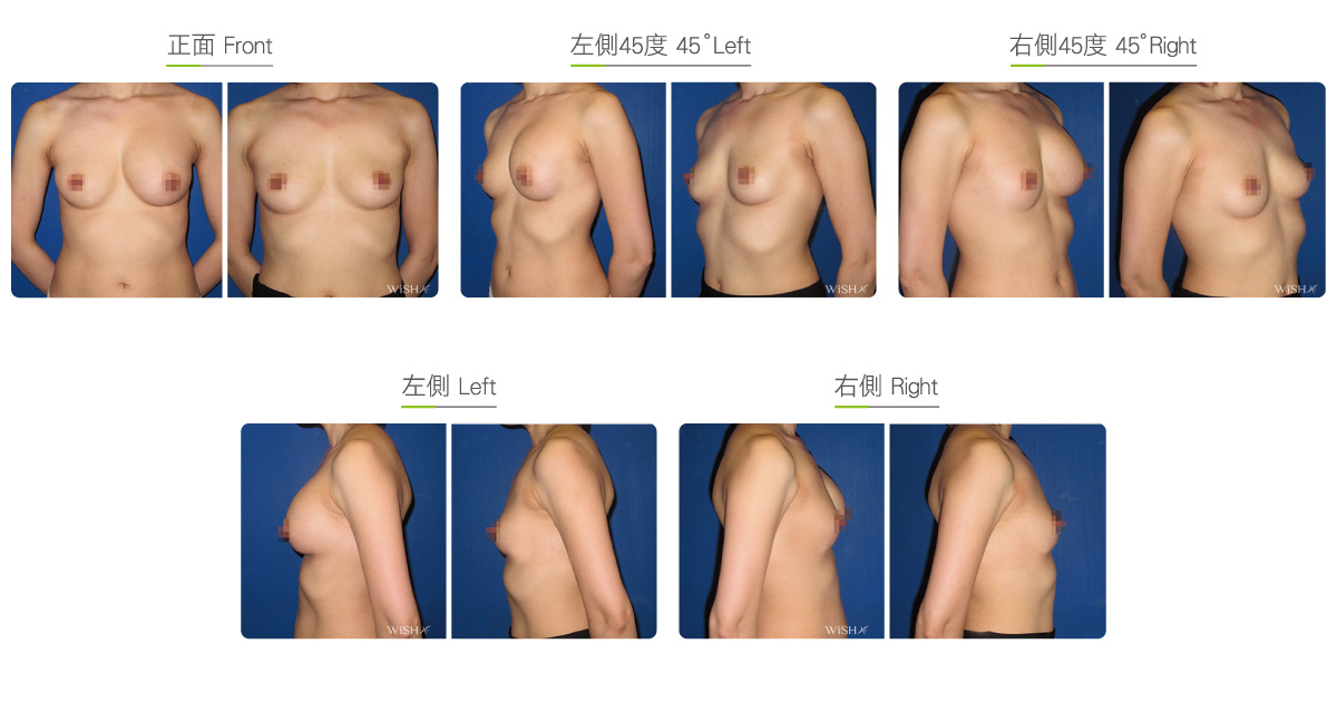 Photos of breast implant removal surgery