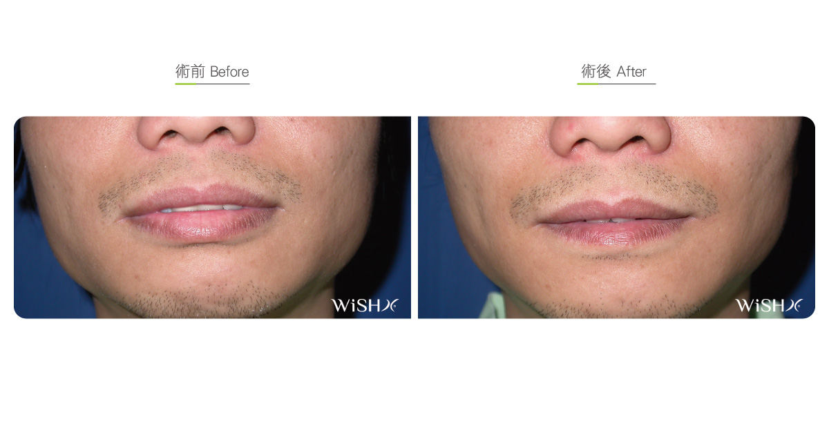 Lip Reduction (Sexy Lip Surgery) - Before&After | WishClinic