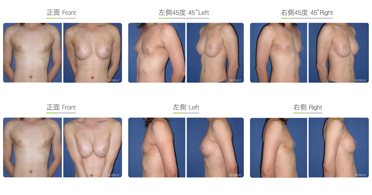 Can I Get Mtf Breast Augmentation If I Have Never Been On Estrogen