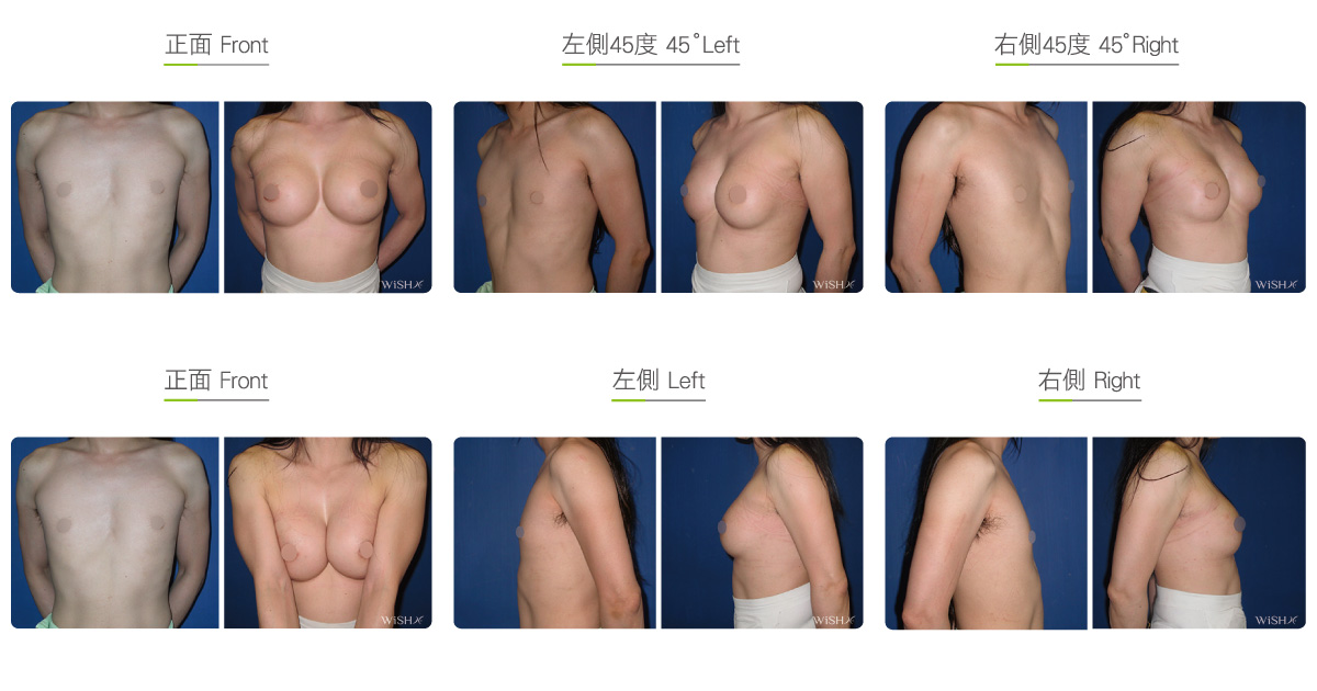 Subfascial Breast Augmentation – A to E