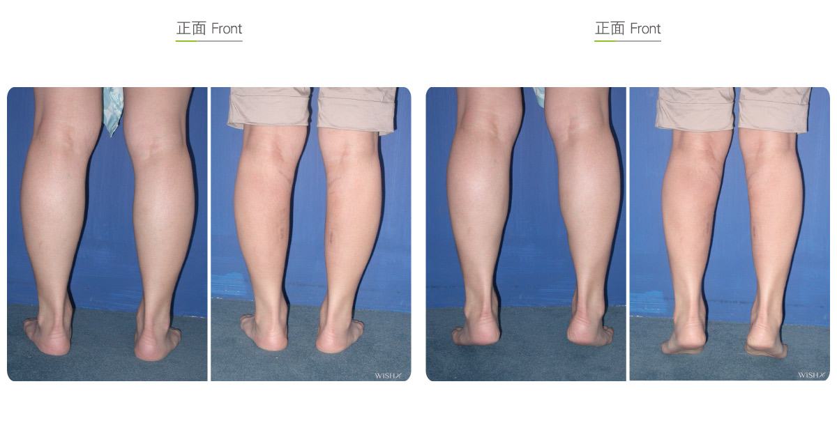 Calf Muscle Resection Wish Aesthetic Surgery Clinic