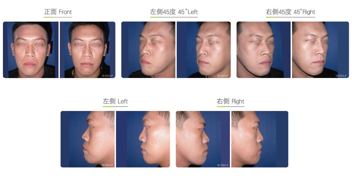 Radiesse Injection - Skin | Wish Aesthetic Surgery Clinic