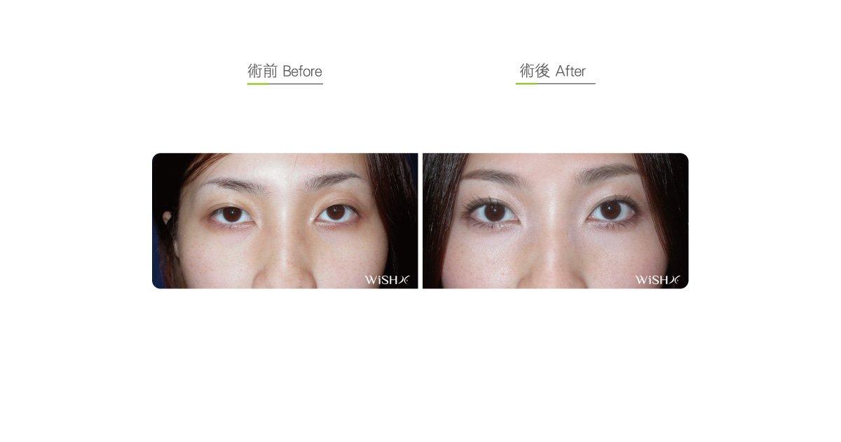 Stitching Double Eyelid Surgery   Wish Aesthetic Surgery Clinic