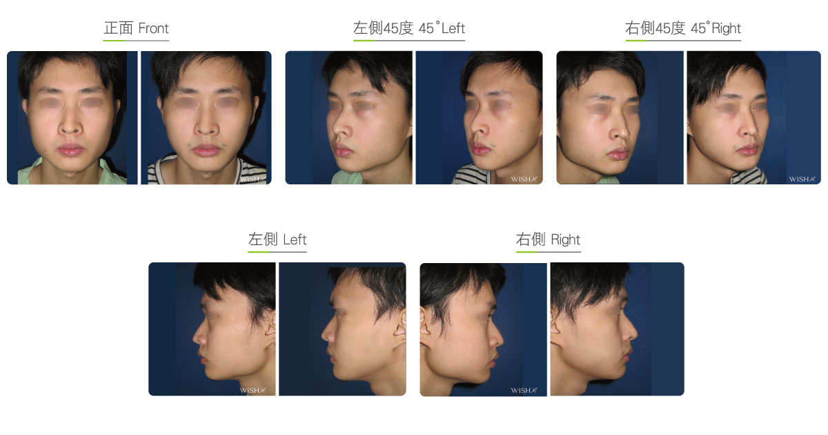 Permanent numbness after facial lift