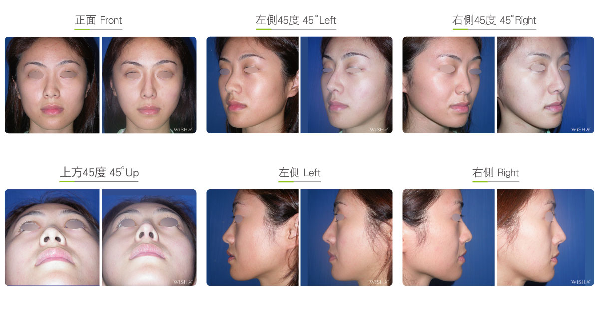 Corrective Nasal Bone Reduction | Wish Aesthetic Surgery Clinic