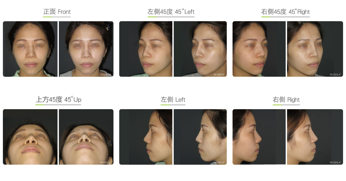 Corrective Nasal Bone Reduction Wish Aesthetic Surgery Clinic
