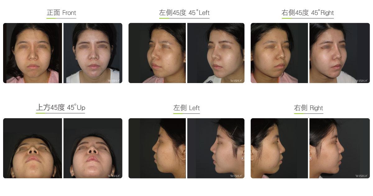 Cheekbone Combined Jaw Reduction - Facial Bone | WishClinic