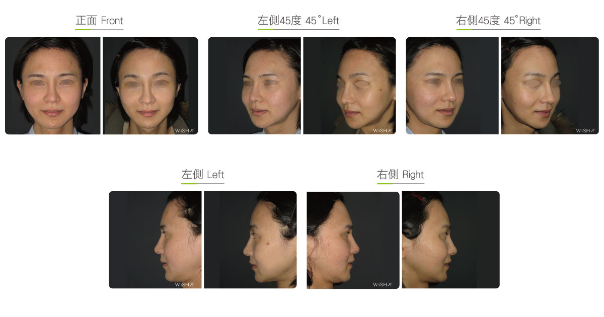Hairline/Forehead Plastic Surgery | Wish Aesthetic Surgery