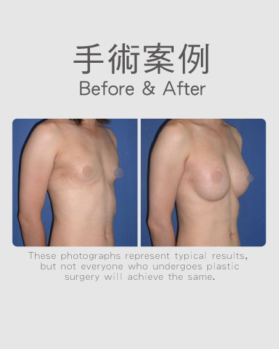 Breast surgery transgender-3577