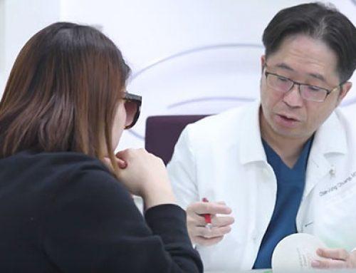 香港美女Miss Wu 知美整形手術前術後感想